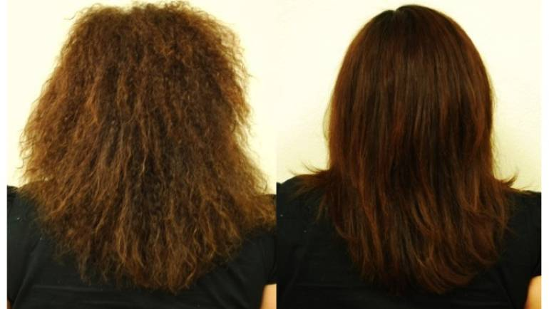 RealLisse Smoothing System
